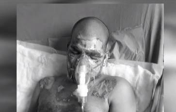 Bolesni plan: Ljubavniku spalila lice da bi uzeo mužev identitet