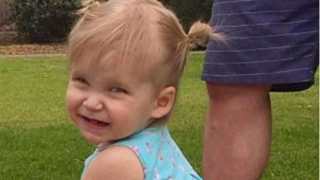Stravična dijagnoza: Tek su joj 2 godine, a boluje od demencije
