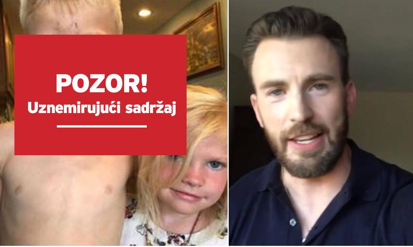 Glumac iznenadio dječaka koji je sestru spasio od psa, njegova snimka rasplakala je mnoge