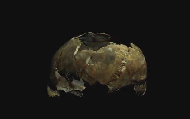 Prije 5000 godina operirali mu mozak kamenom, nije preživio