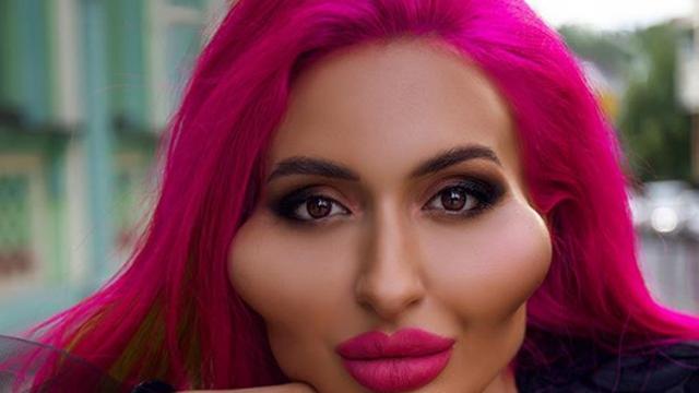 Instagram model s 'najvećim obrazima na svijetu' tvrdi da su još uvijek mali i ne planira stati