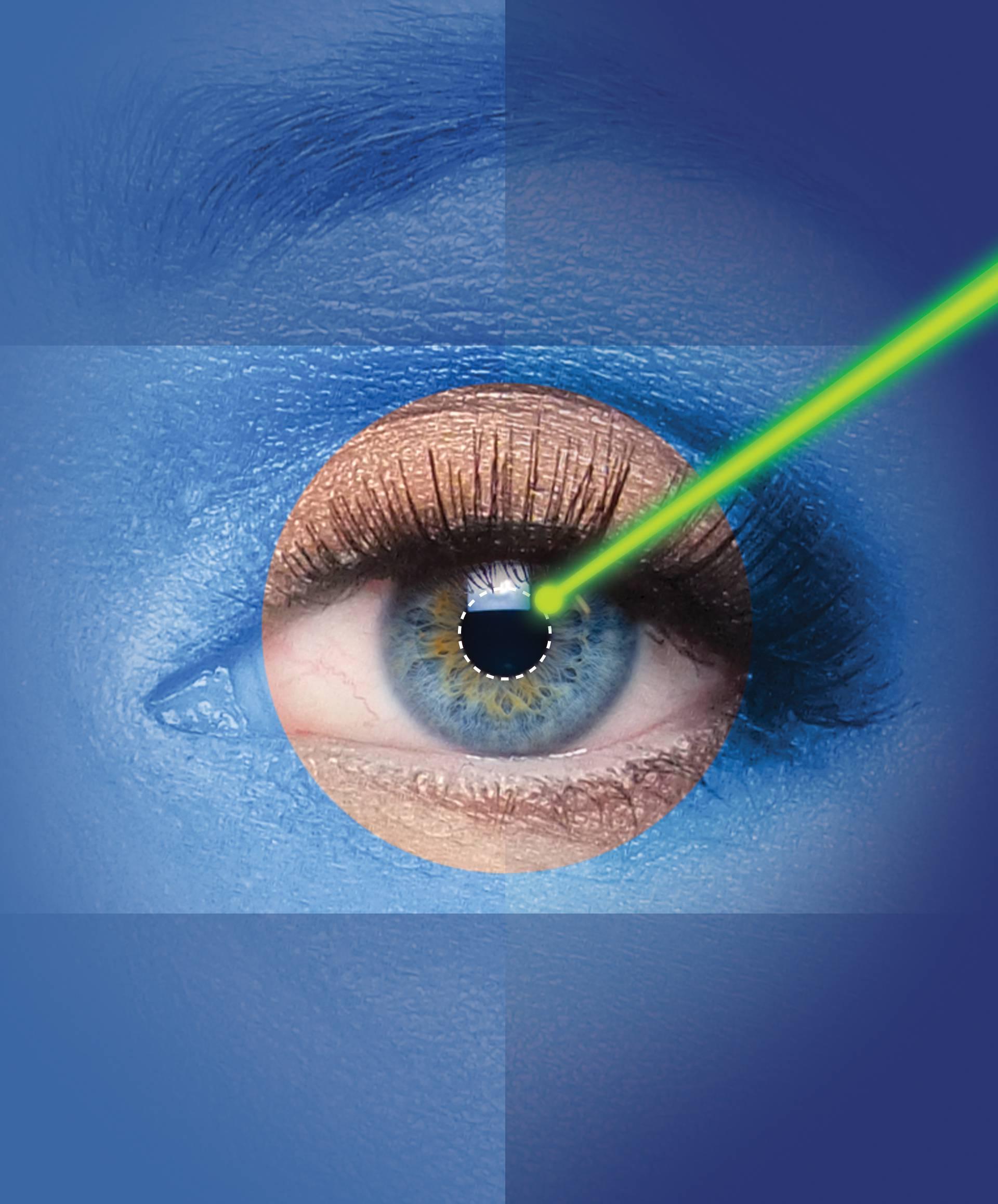 Zašto je proljeće idealno za lasersko skidanje dioptrije?