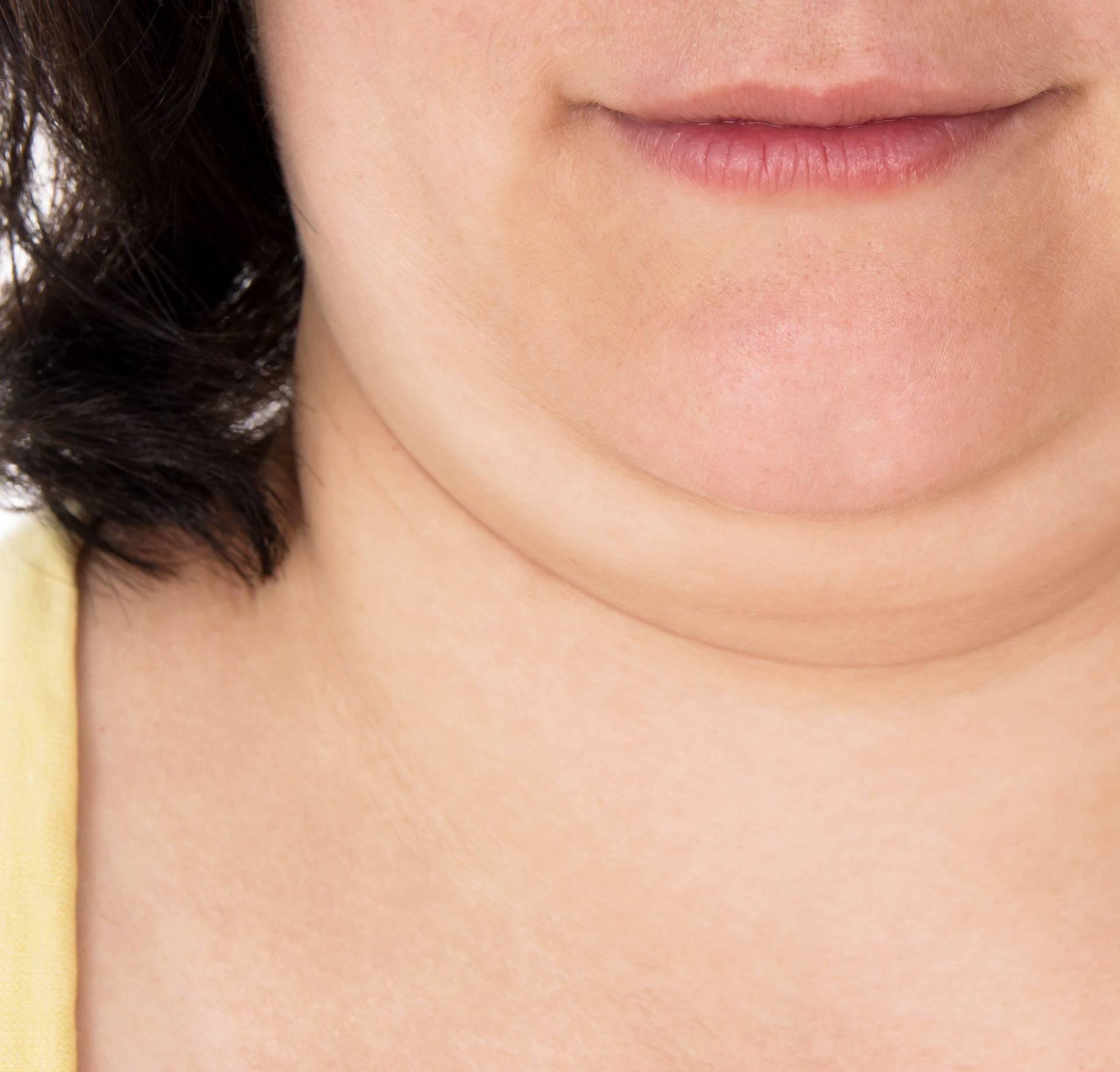 Sve metode protiv podbratka: Vježbe, smrzavanje, liposukcija