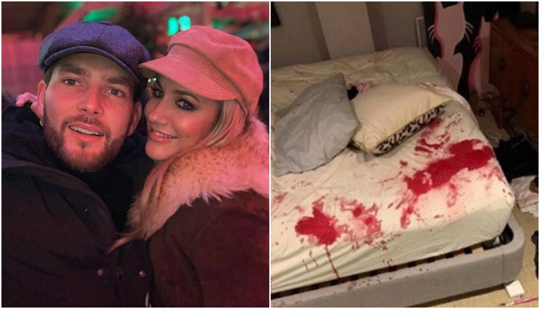 Potukla se s dečkom pa su se proširile fotke krvavog kreveta