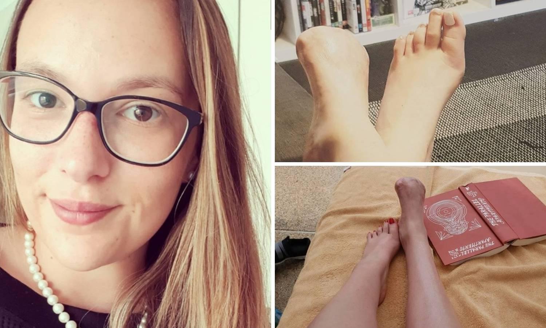 Zbog riblje pedikure ostala bez prstiju: 'Sretna sam da hodam'