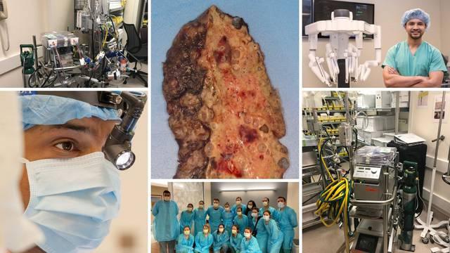 Žena (20) preboljela koronu, ali potpuno joj je uništila pluća pa su joj ih morali transplantirati