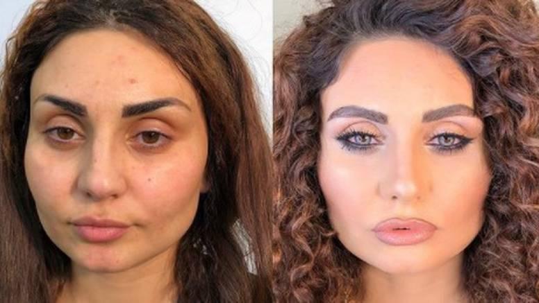 Vizažist šminka žene s ožiljcima: Svaka od njih je prekrasna bez obzira na svoje 'nesavršenosti'