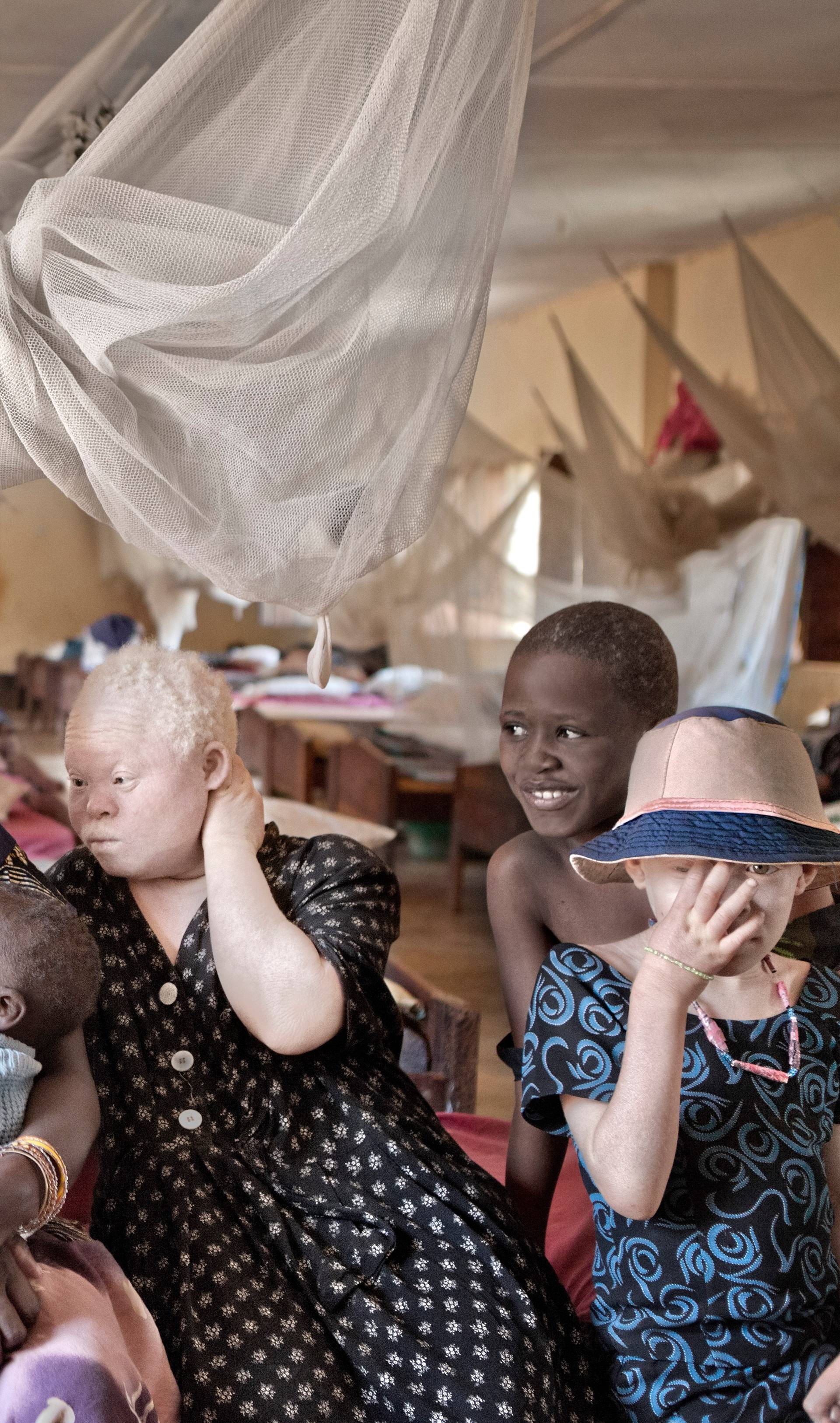 Persecuted: Albino People Seek Refuge From Vicious Body Part Traffickers