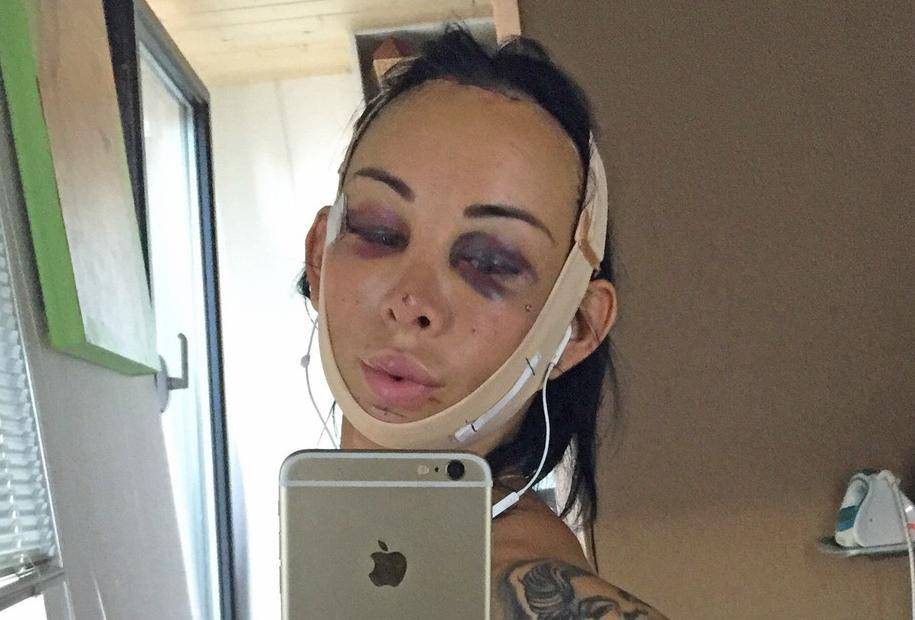 TRANS WOMAN REVEALS £45K COST OF TRANSFORMATION